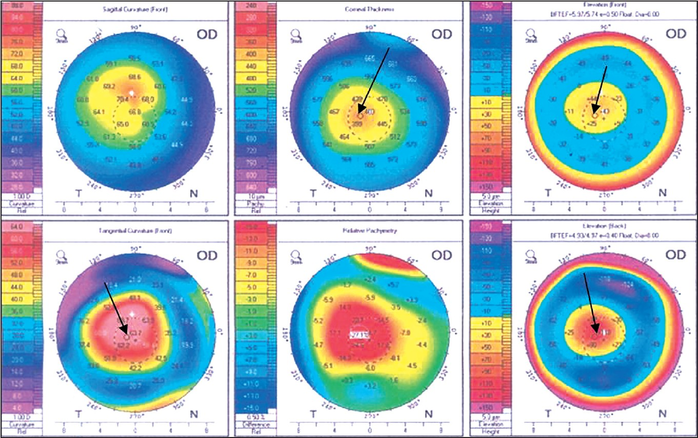 Corneal Topography Keratoconus corneal topography and tomography ...