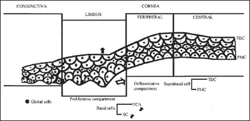 Limbal Stem Cell Deficiency Current Management Lal I Gupta N