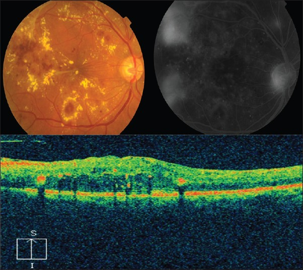 correlation between clinical fluorescein angiography and