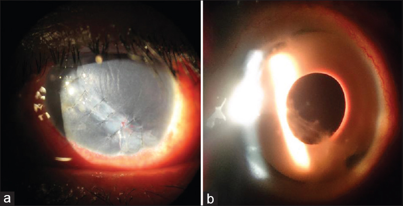 Figure 1: Clinical photographs of case 1. (a) Primary repair of the open wound following ocular trauma, complete iris loss, and aphakia is observed. The patient complained of debilitating glare and photophobia. (b) Appearance at the last follow-up visit. The patient's best-corrected visual acuity was 20/40, and glare and photophobia were absent