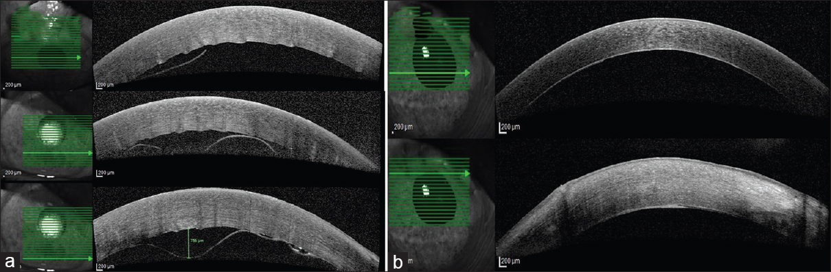 Figure 1: (a) Anterior segment optical coherence tomography, 2 weeks after cataract surgery, showing corneal edema with central area of Descemet's membrane loss and the residual Descemet's membrane detached to varying extents along the surrounding periphery. (b) Anterior segment optical coherence tomography, 2 months postdescemetopexy, showing the residual Descemet's membrane attached. Superior cornea showing some residual edema with a thickened posterior corneal layer