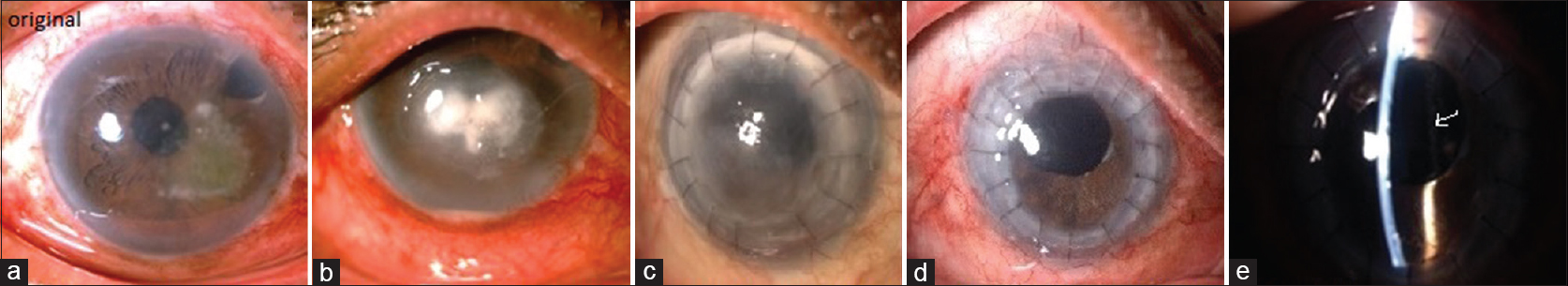 Figure 14: Case 10 (a) Superficial fungal ulcer at the time of presentation, (b) deep corneal infiltrate in spite of maximum medical treatment after 2 weeks, (c) failed graft after therapeutic penetrating keratoplasty, (d) repeat penetrating keratoplasty with scleral-fixated intraocular lens after 1 year (e) scleral-fixated intraocular lens after on slit lamp on oblique illumination