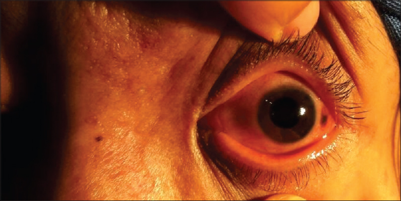 Figure 2: The anterior segment photograph of the left eye demonstrates mid-dilated pupil
